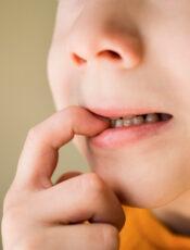 Hvorfor bider børn? 4 tips når børn bider